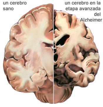 Cerebro con Alzheimer Gran parte de los estudios realizado por Dr. Maccioni se ha centrado en las enfermedades neuro cerebrales y especialmente el Alzheimer.